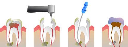 endodontsko zdravljenje zob v mariboru