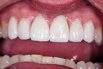 fasete na zobeh interkaninega sektorja