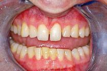 fasete na zobeh