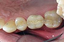 Kovinsko keramična prevleka na implantatu na zgornjem desnem prvem kotniku