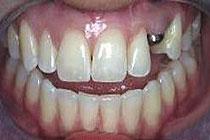 implantant brez zoba