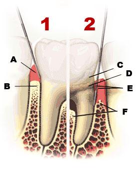 parodontologija zoba