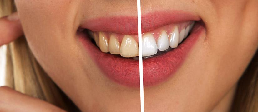 Zobek - Storitev beljenja zob