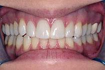 Zobje interkaninega sektorja po izdelavi faset in brez diastem