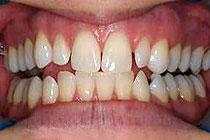 Zobje interkaninega sektorja z diastemami