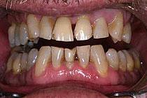 zobje pred izdelavo keramicnih prevlek in faset