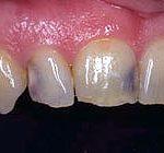 zobni karies izdelava kompozitivnih zalivk v mariboru