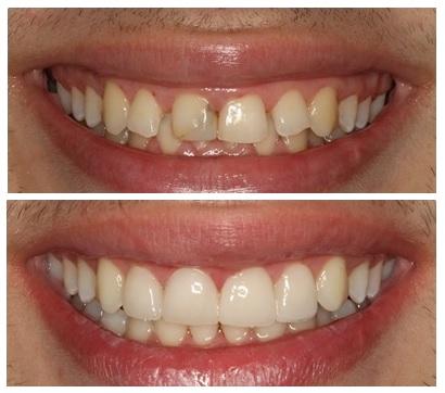 zobek-zobne-luske-imagejpg